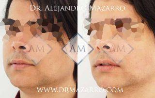 Bichectomía en Barcelona - Dr. Mazarro